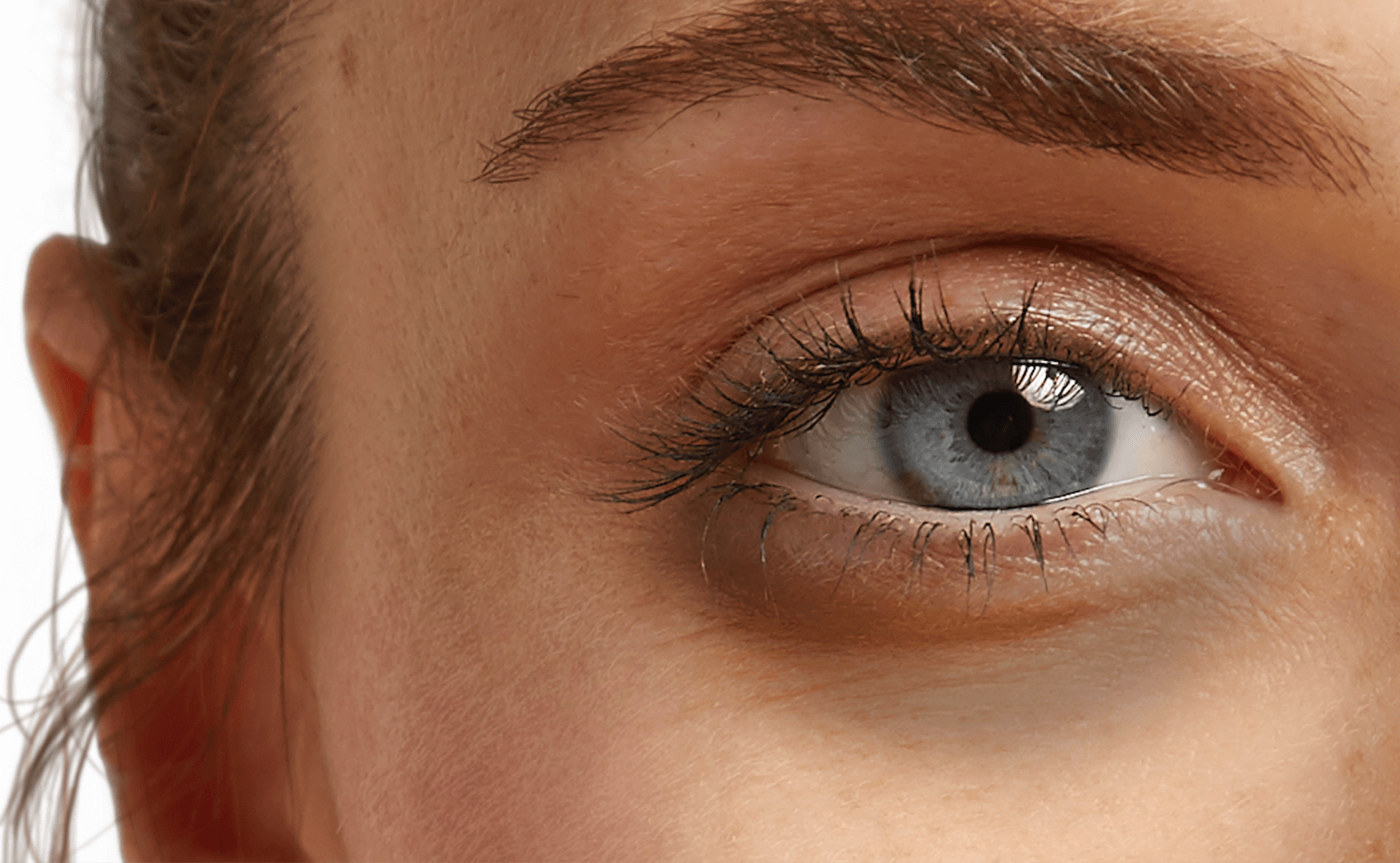 Shed Some Light On Dark Circles